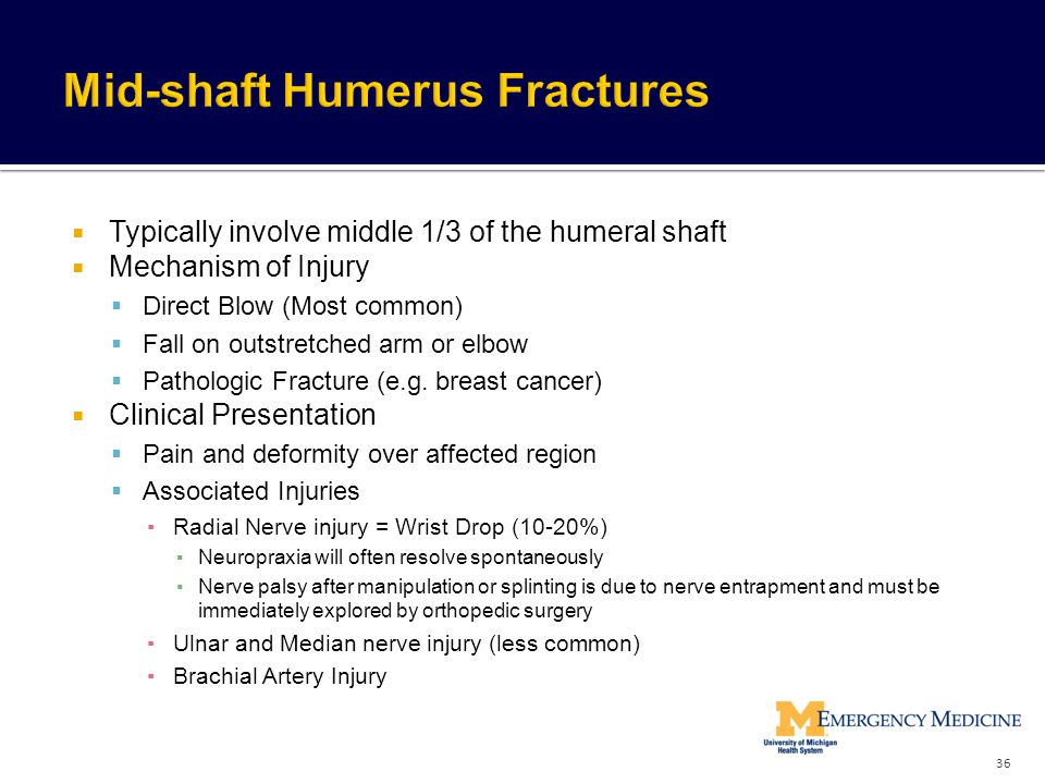 Mid-shaft Humerus Fractures