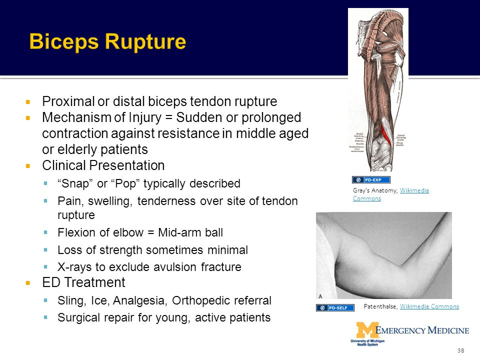Biceps Rupture Proximal or distal biceps tendon rupture