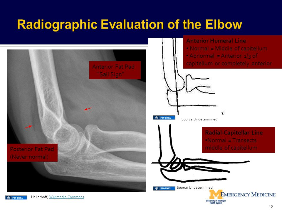 Radiographic Evaluation of the Elbow
