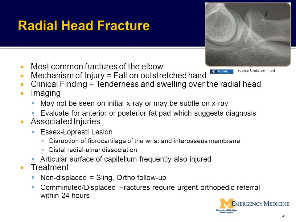 Radial Head Fracture Most common fractures of the elbow