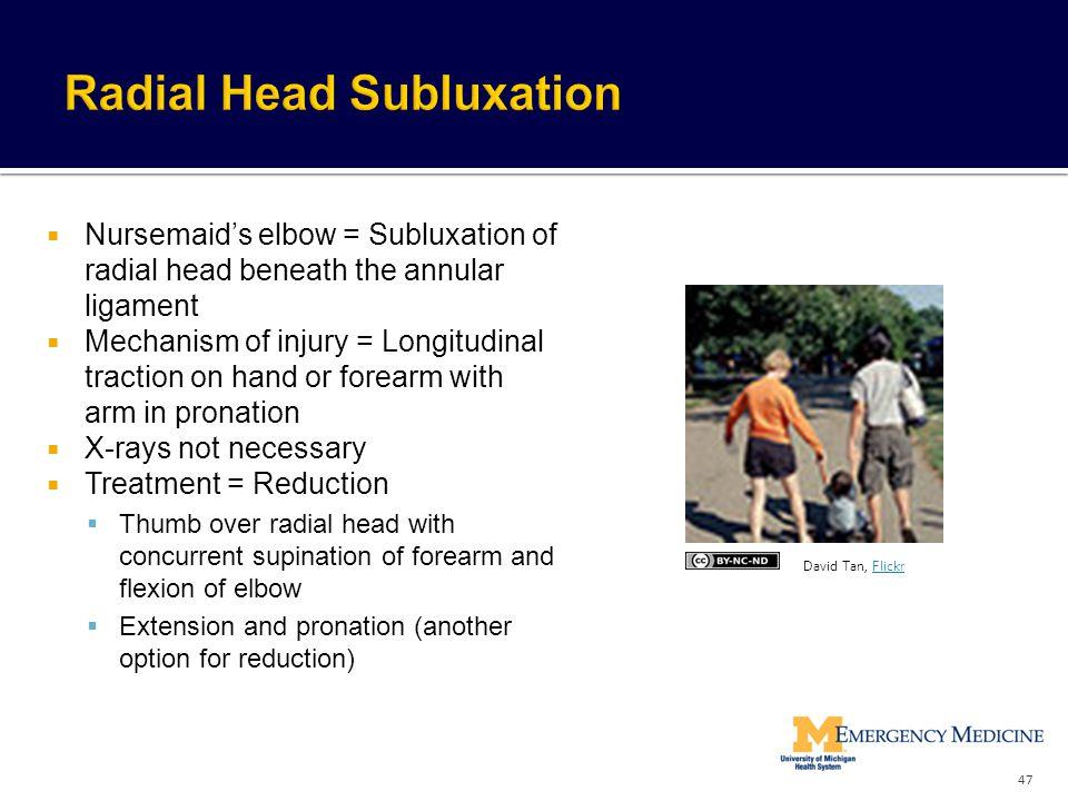 Radial Head Subluxation
