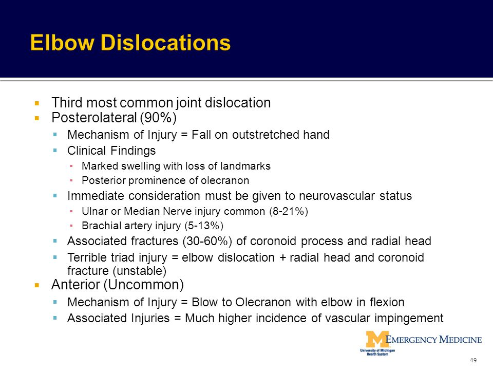 Elbow Dislocations Third most common joint dislocation