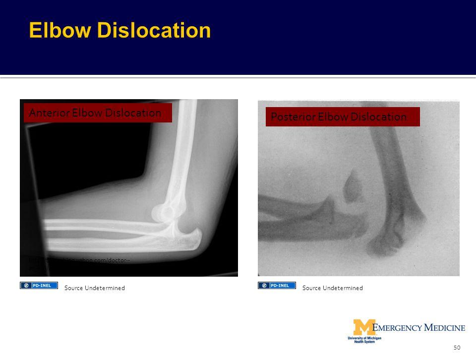Elbow Dislocation Anterior Elbow Dislocation