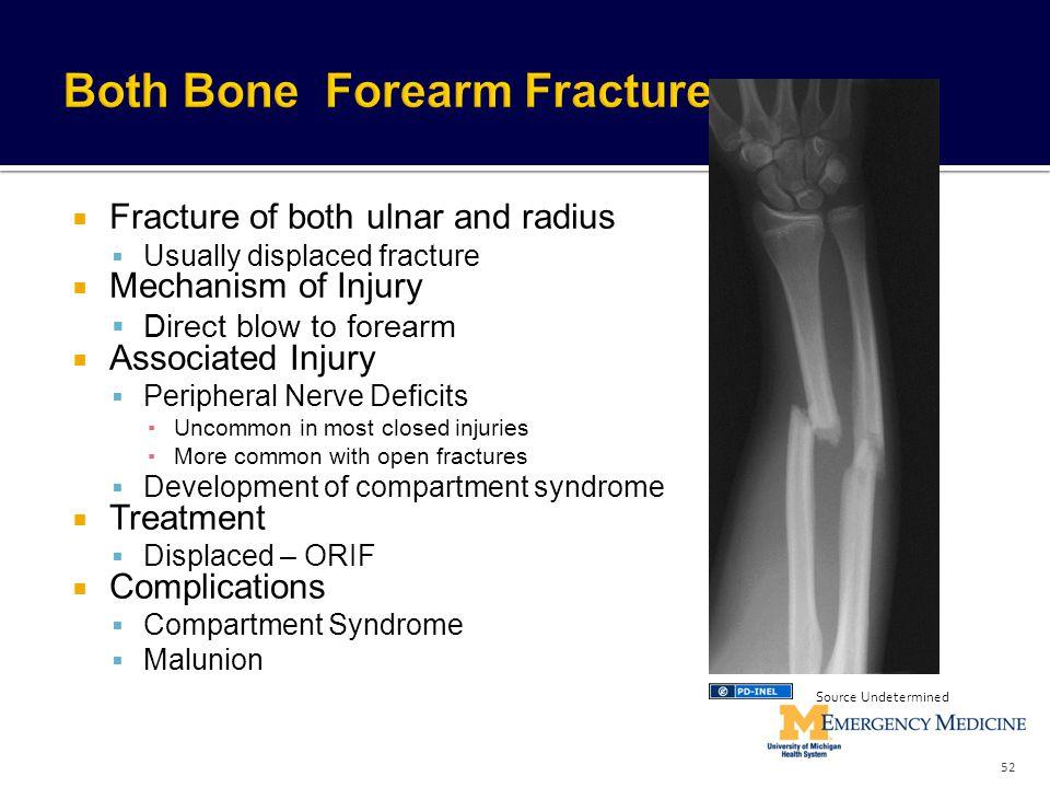 Both Bone Forearm Fracture