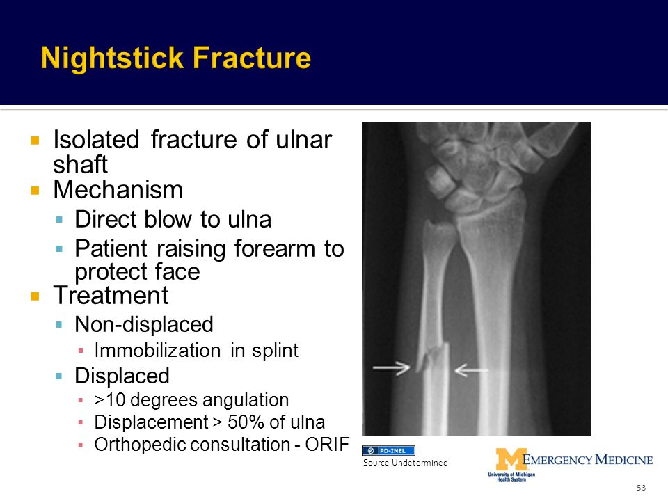 Nightstick Fracture Isolated fracture of ulnar shaft Mechanism