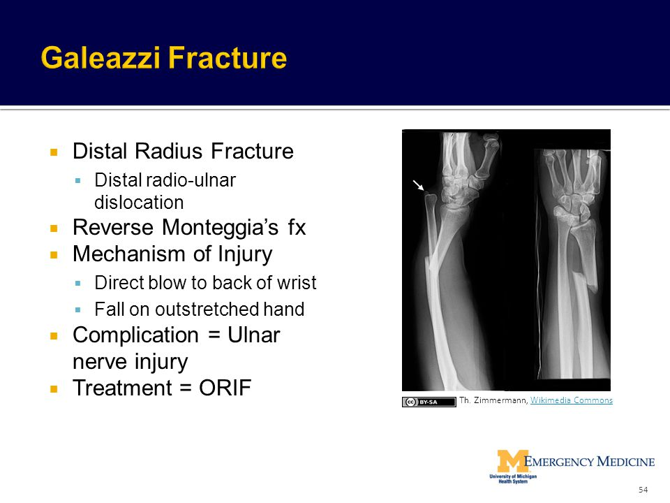 Galeazzi Fracture Distal Radius Fracture Reverse Monteggia's fx