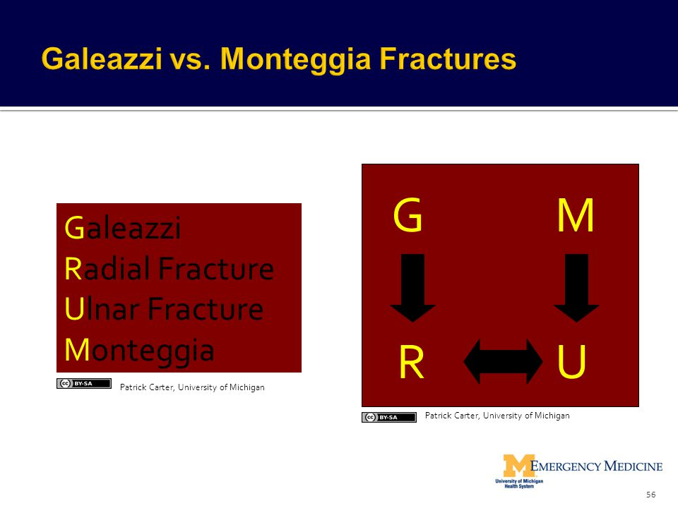Galeazzi vs. Monteggia Fractures
