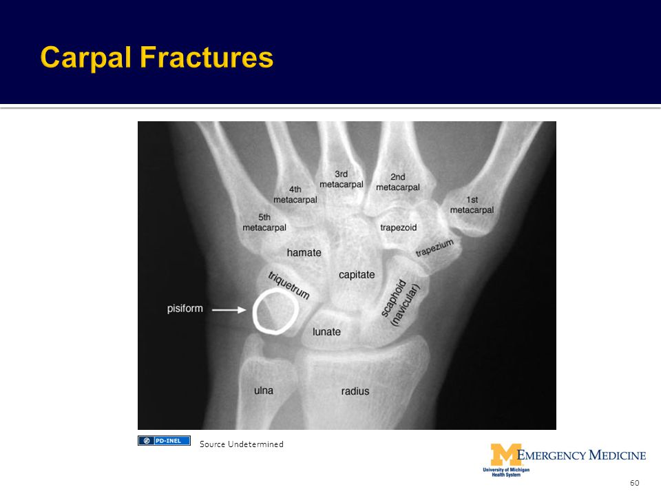 Carpal Fractures Source Undetermined