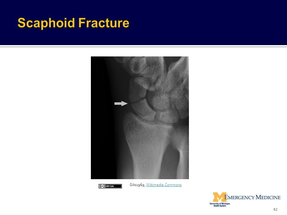 Scaphoid Fracture Gilo1969, Wikimedia Commons