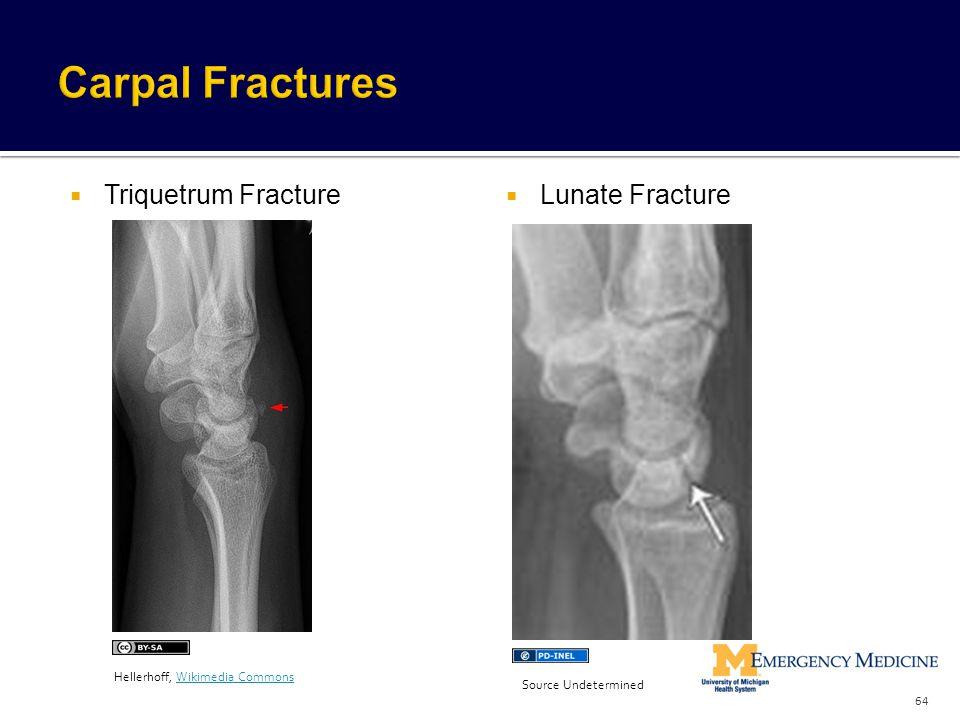 Carpal Fractures Triquetrum Fracture Lunate Fracture