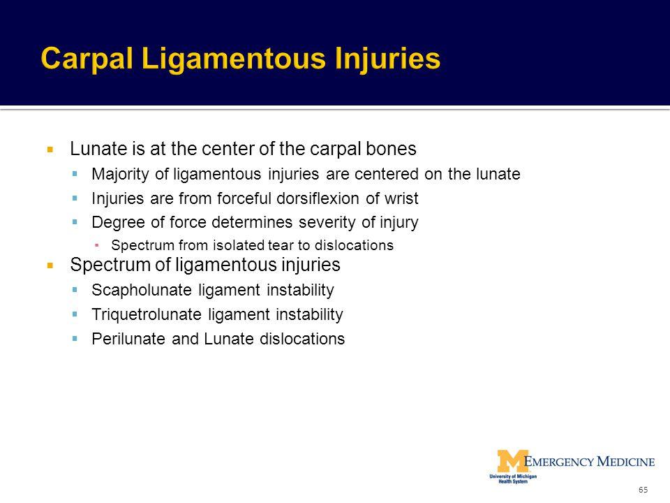 Carpal Ligamentous Injuries