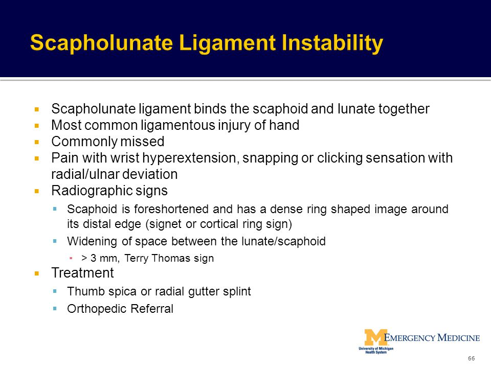 Scapholunate Ligament Instability