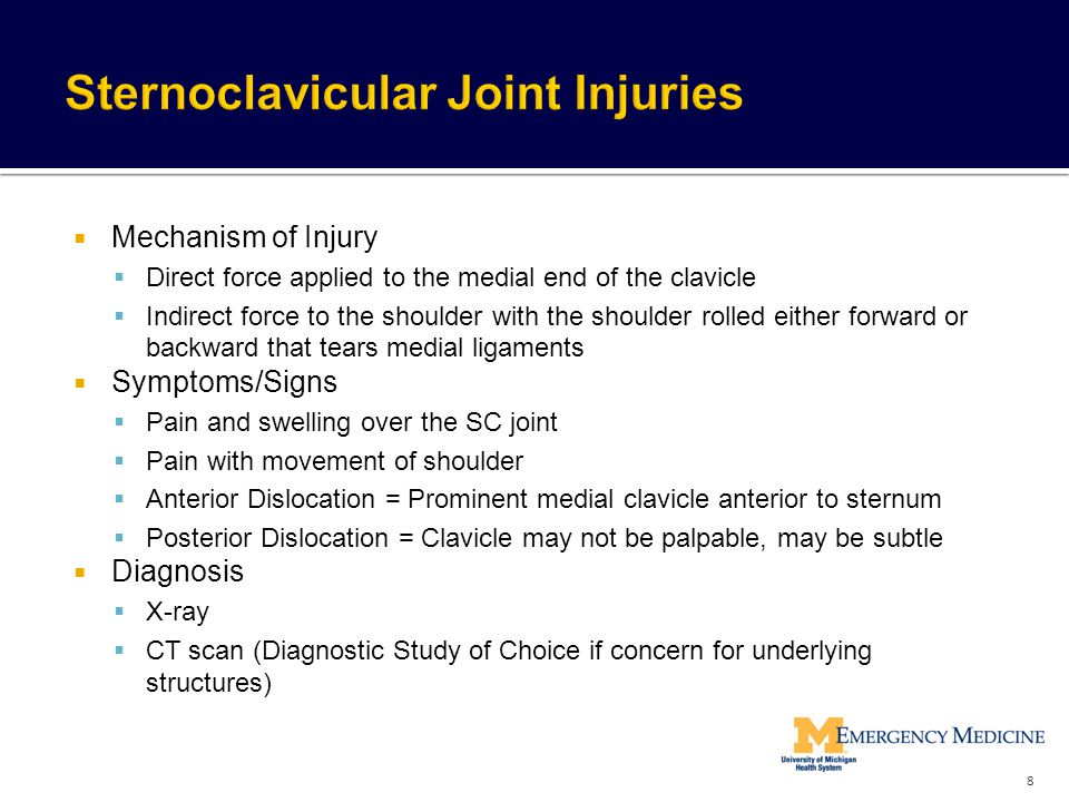 Sternoclavicular Joint Injuries