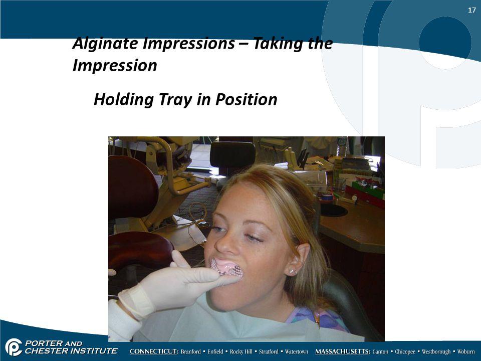 Alginate Impressions – Taking the Impression