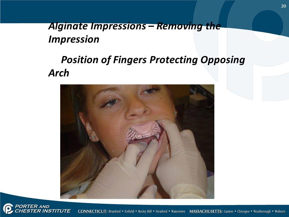 Alginate Impressions – Removing the Impression
