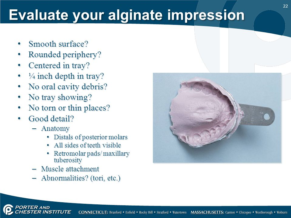 Evaluate your alginate impression