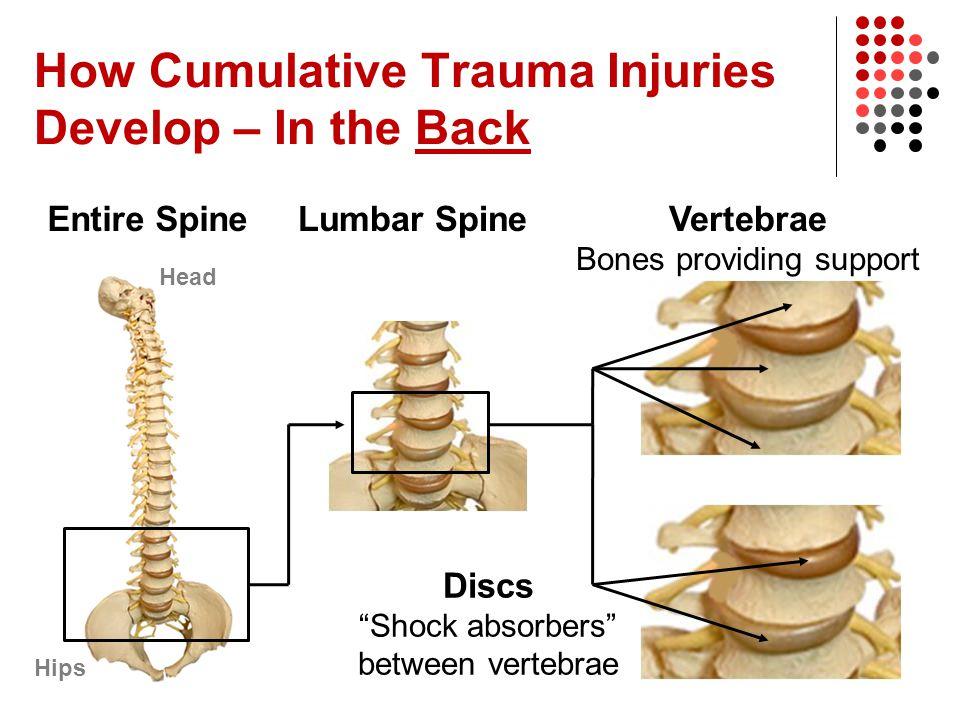 How Cumulative Trauma Injuries Develop – In the Back