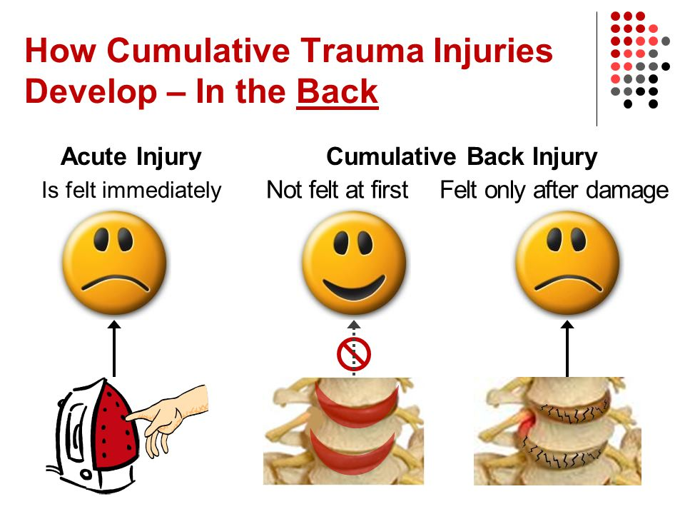 How Cumulative Trauma Injuries Develop – In the Back