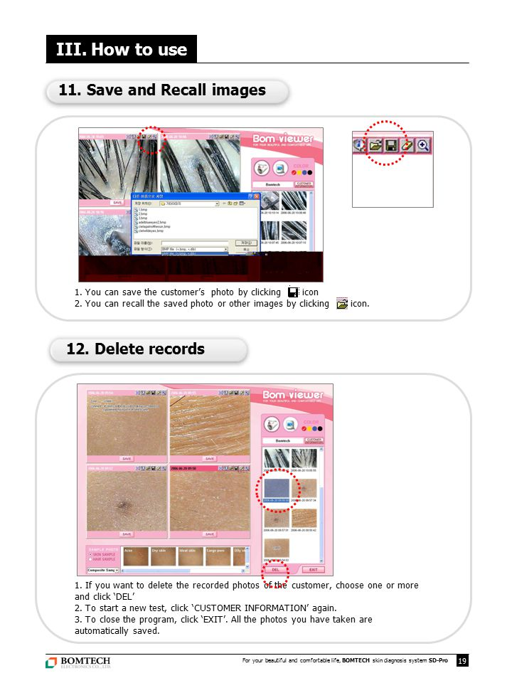 III. How to use 11. Save and Recall images 12. Delete records