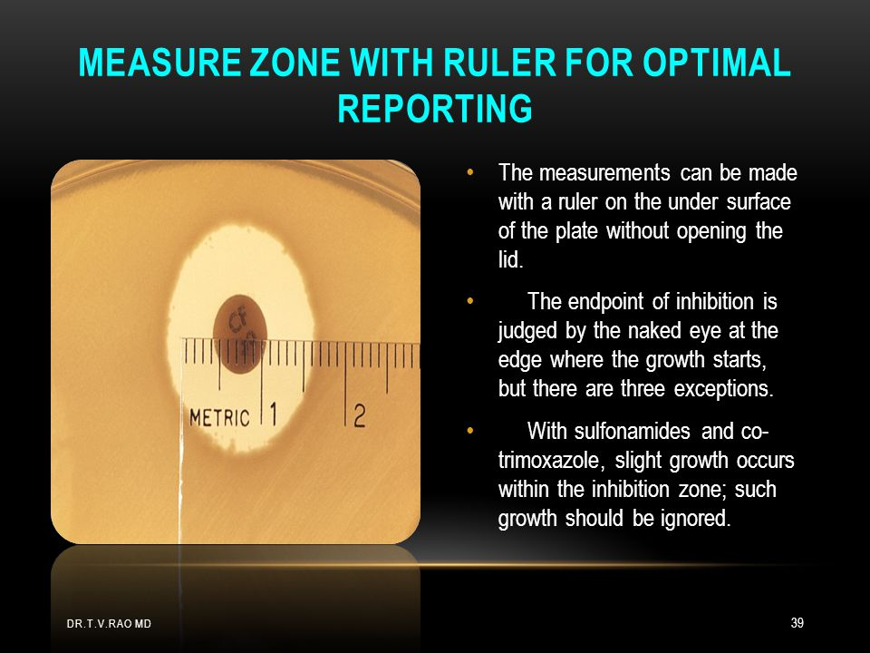 Measure zone with ruler for optimal reporting