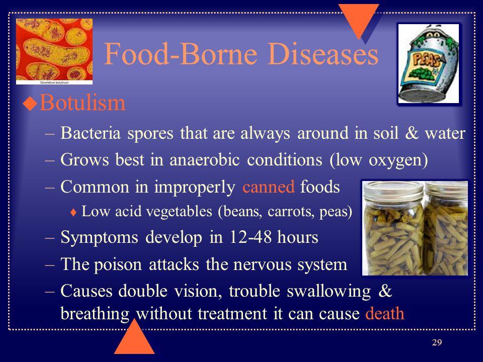 Food-Borne Diseases Botulism