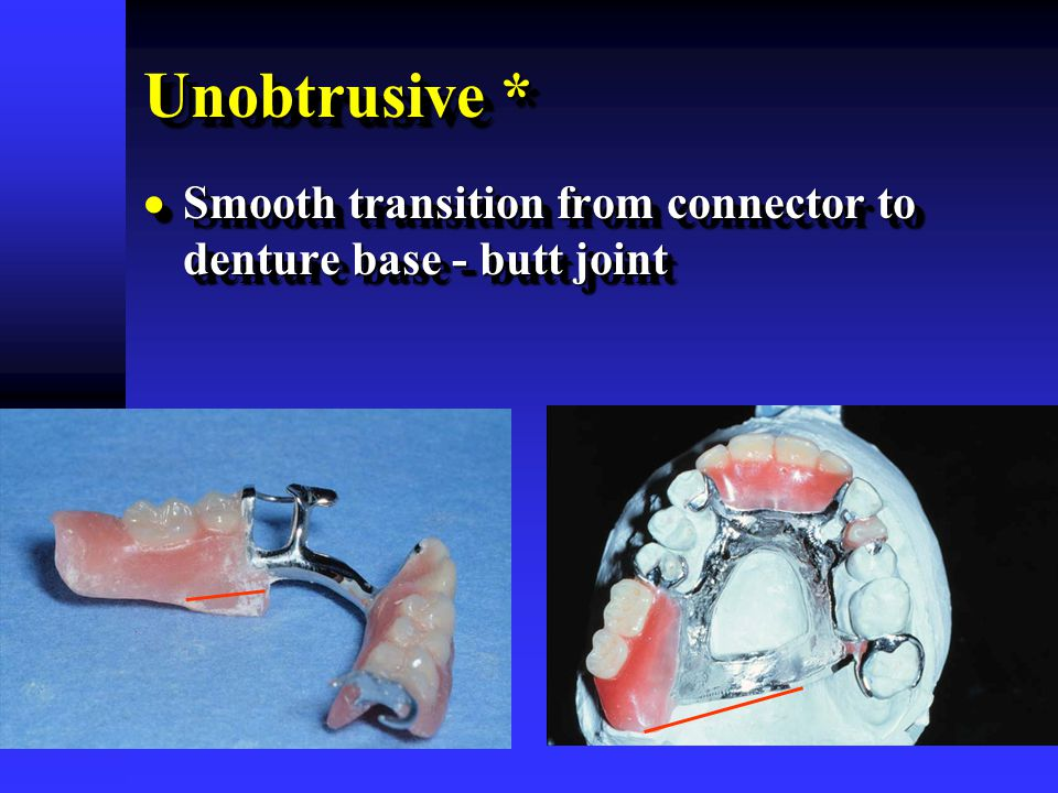 Unobtrusive * Smooth transition from connector to denture base - butt joint.