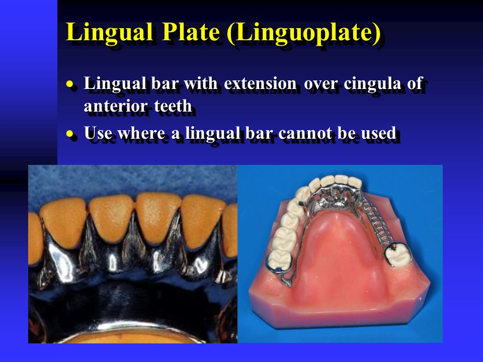 Lingual Plate (Linguoplate)