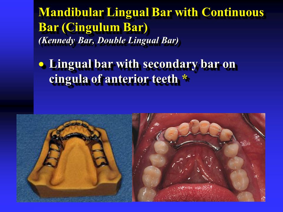 Lingual bar with secondary bar on cingula of anterior teeth *