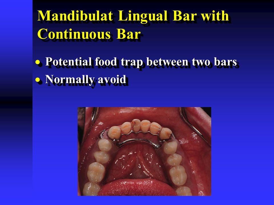 Mandibulat Lingual Bar with Continuous Bar