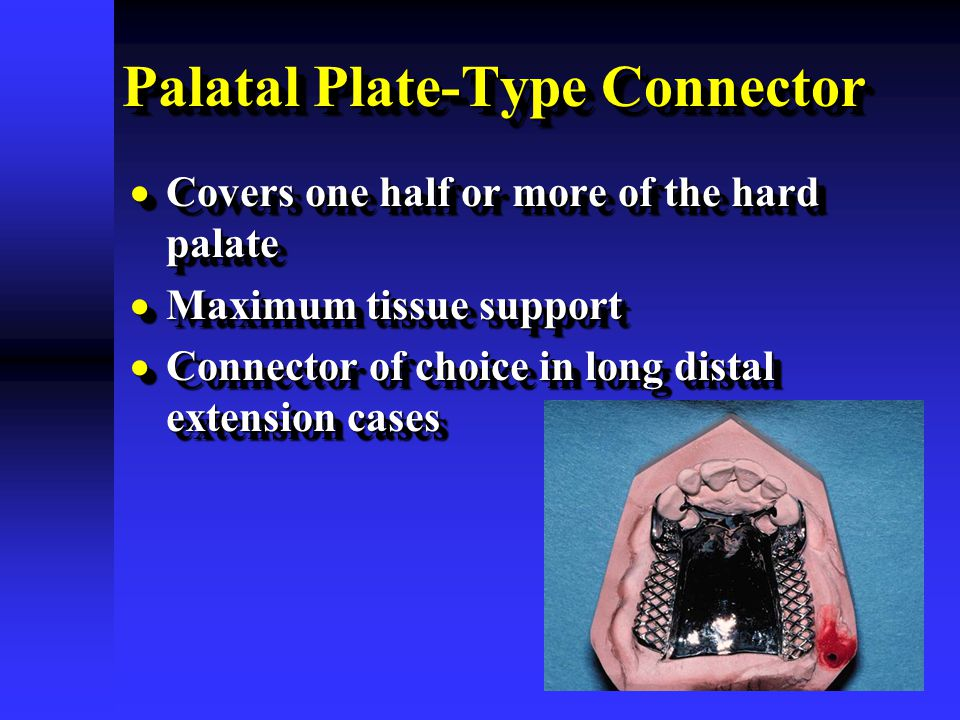 Palatal Plate-Type Connector