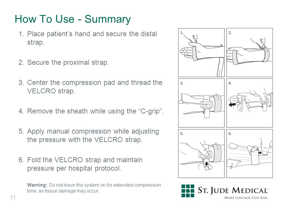 How To Use - Summary 1. Place patient's hand and secure the distal strap. 2. Secure the proximal strap.