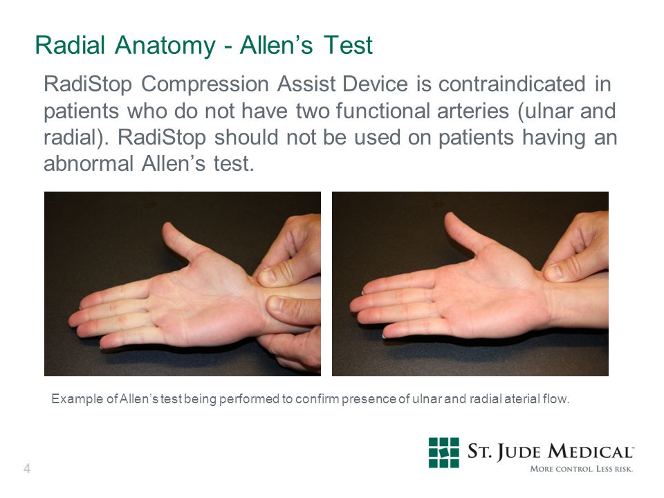 Radial Anatomy - Allen's Test