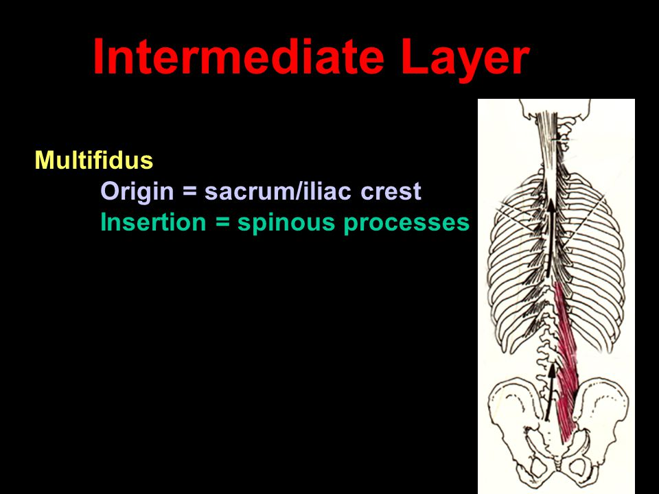 Intermediate Layer Multifidus Insertion = spinous processes