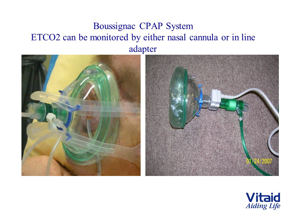 Boussignac CPAP System ETCO2 can be monitored by either nasal cannula or in line adapter