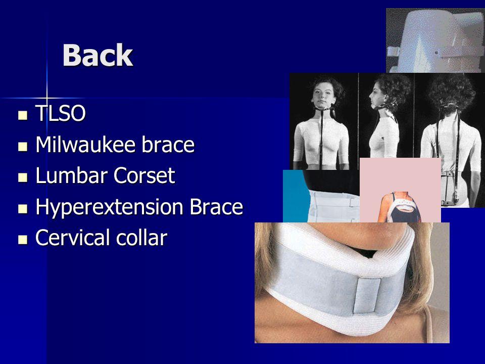 Back TLSO Milwaukee brace Lumbar Corset Hyperextension Brace