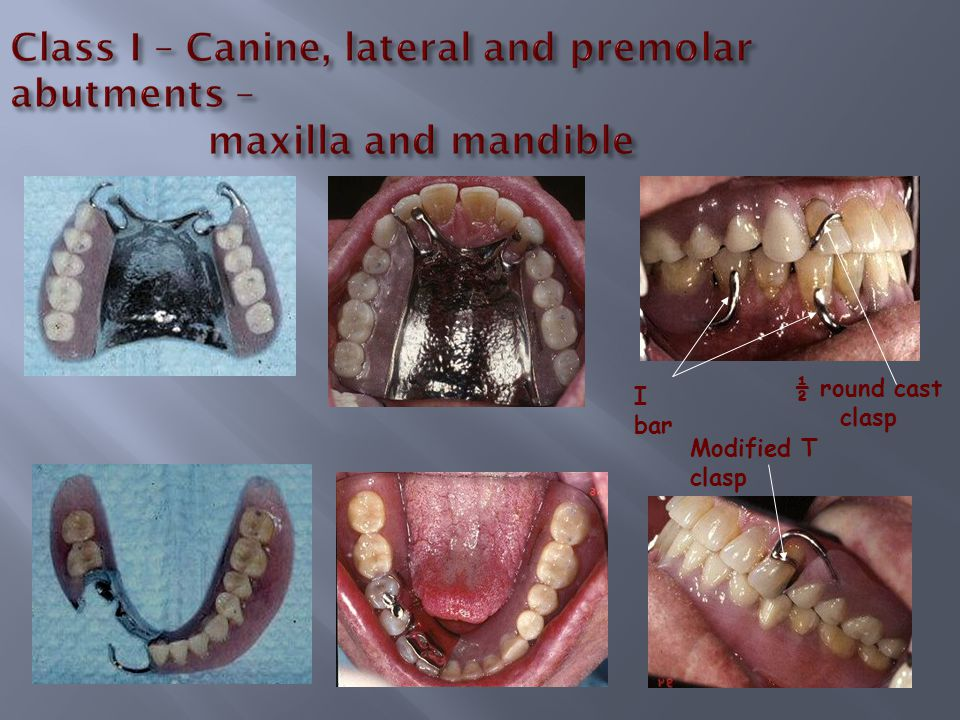 Class I – Canine, lateral and premolar abutments – maxilla and mandible