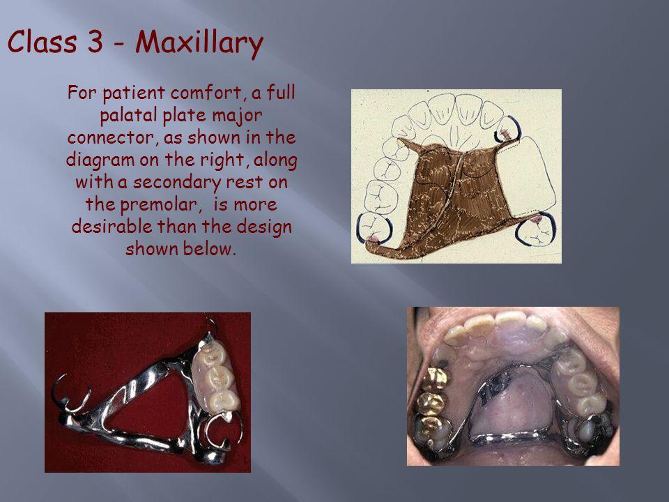 Class 3 - Maxillary