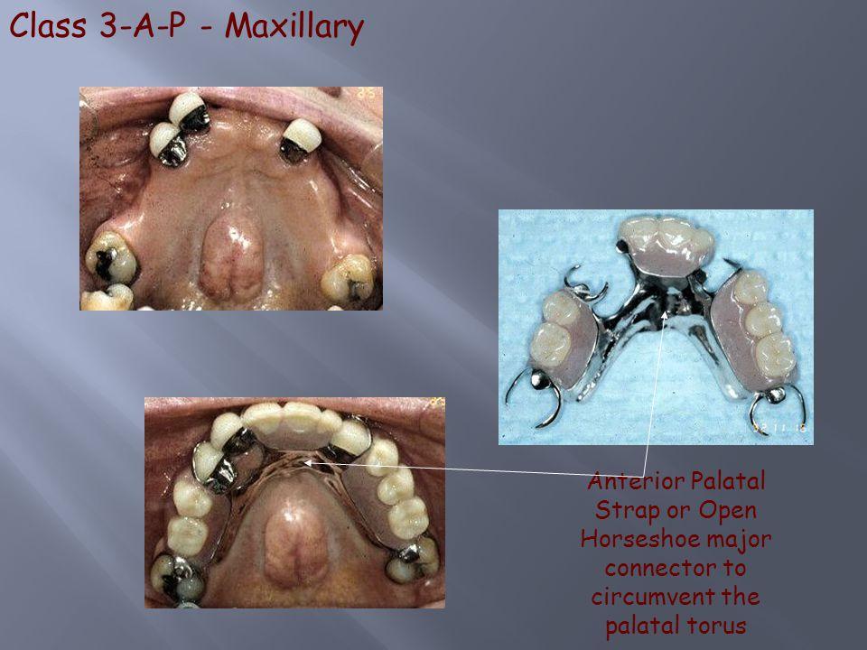 Class 3-A-P - Maxillary Anterior Palatal Strap or Open Horseshoe major connector to circumvent the palatal torus.