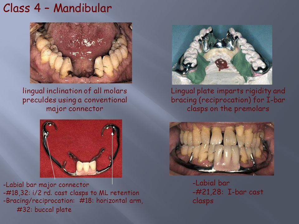 Class 4 – Mandibular lingual inclination of all molars preculdes using a conventional major connector.