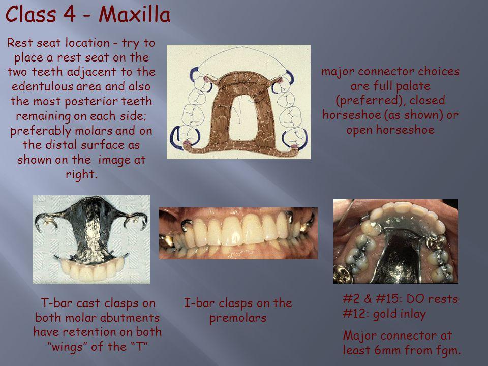 I-bar clasps on the premolars
