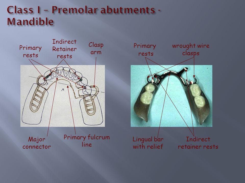 Class I – Premolar abutments - Mandible