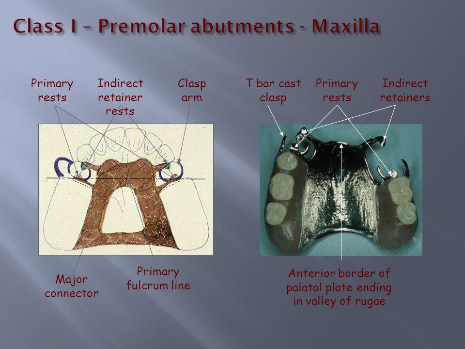 Class I – Premolar abutments - Maxilla