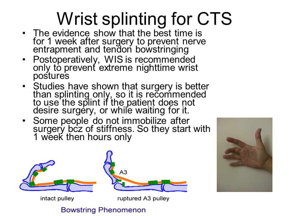 Wrist splinting for CTS