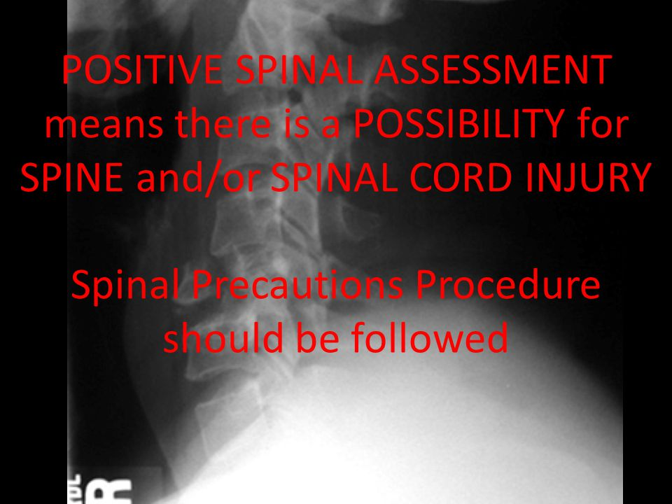 POSITIVE SPINAL ASSESSMENT means there is a POSSIBILITY for SPINE and/or SPINAL CORD INJURY Spinal Precautions Procedure should be followed