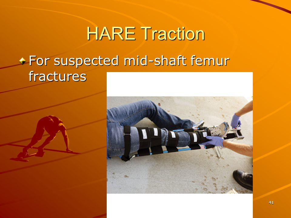 HARE Traction For suspected mid-shaft femur fractures