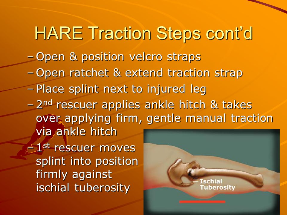 HARE Traction Steps cont'd