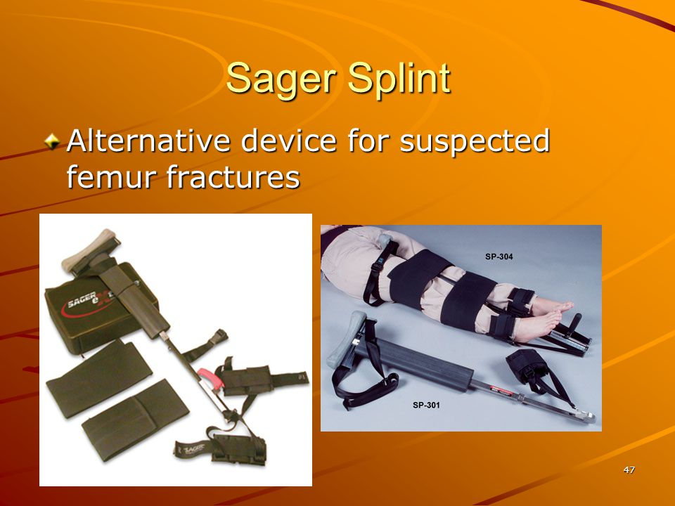 Sager Splint Alternative device for suspected femur fractures