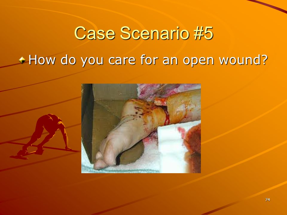 Case Scenario #5 How do you care for an open wound