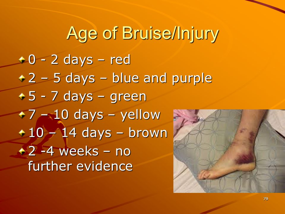 Age of Bruise/Injury 0 - 2 days – red 2 – 5 days – blue and purple