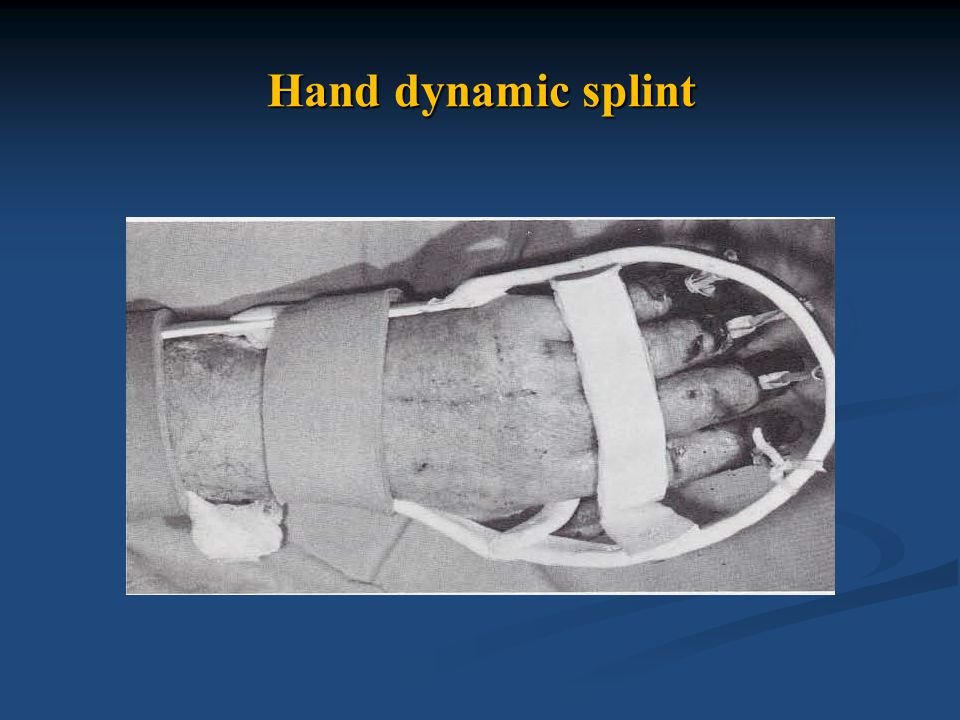 dynamic splint Hand